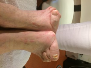 Reuma Artritis
