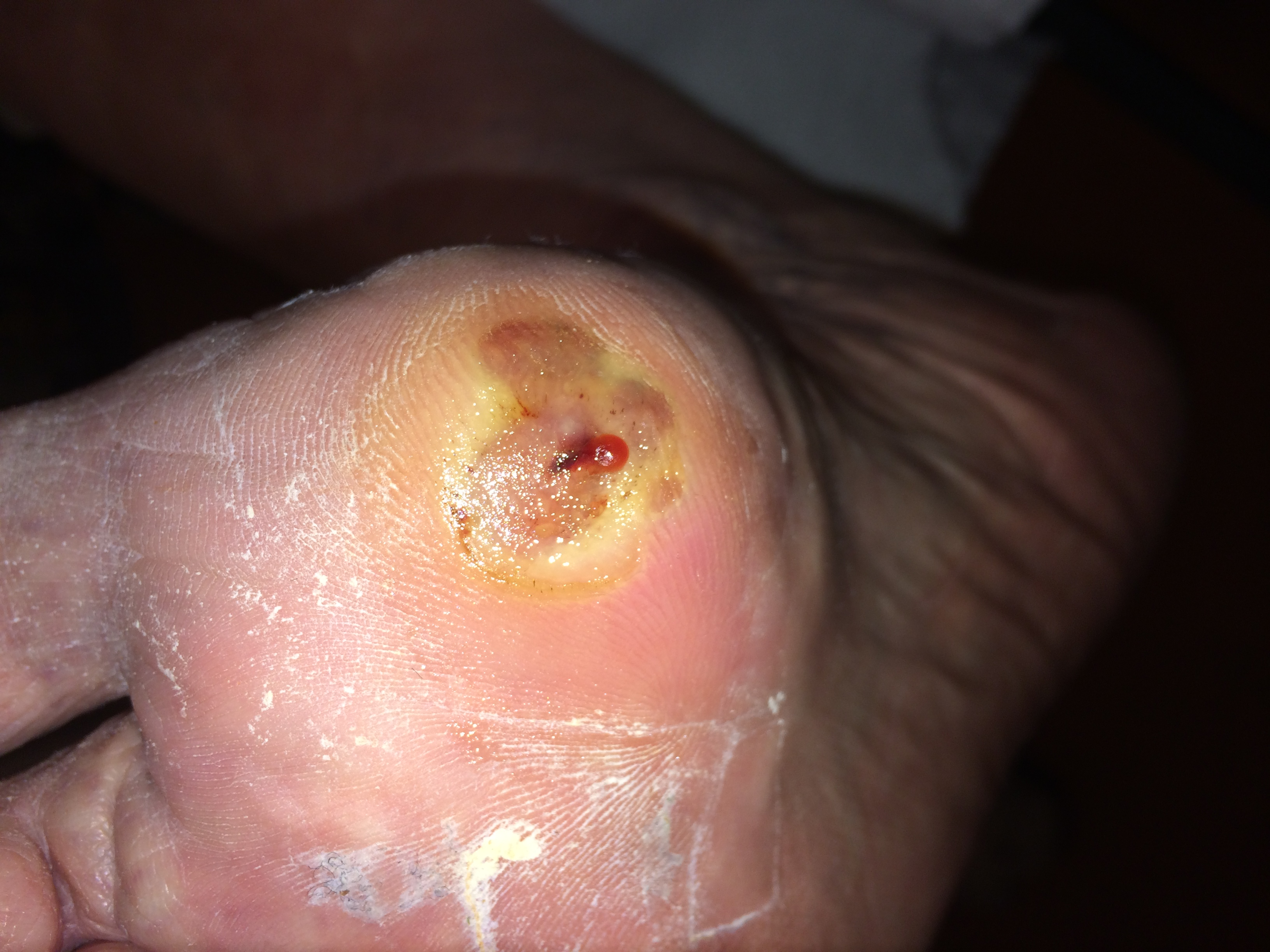ulcus voet